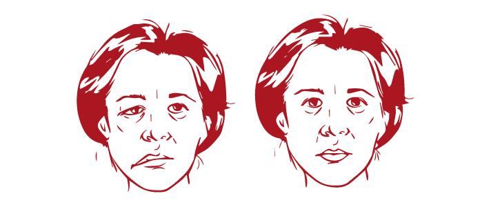 El Punto Para Mejorar La Parálisis Facial En Casa Escuela